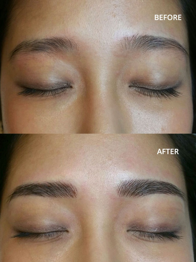 100 Eyebrow Tattoo Removal By Exclusive Laser