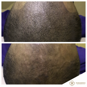 Hair micropigmentation 2