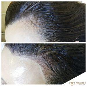 hairline 2
